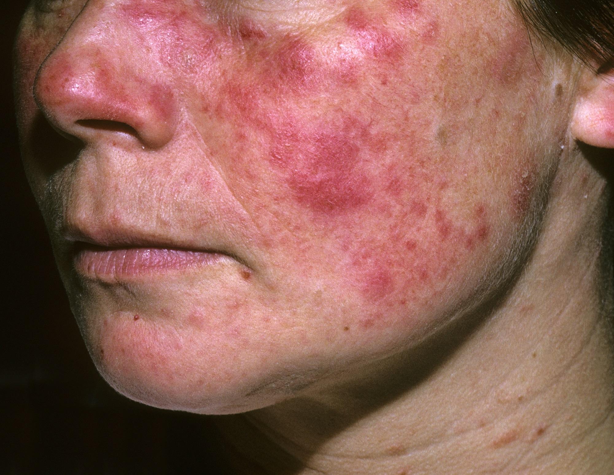 Los cambios atmosféricos y ambientales afectan los brotes de lupus ...